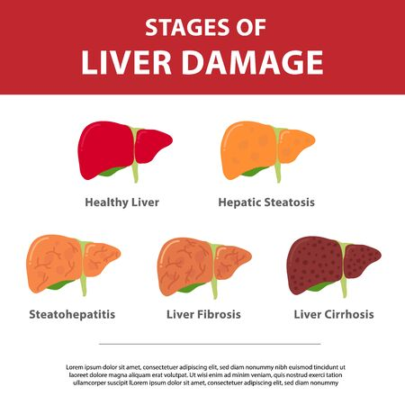 Stages of liver damage concept. Vector illustration of healthy liver, steatosis, NASH, fibrosis and cirrhosis. Flat vector illustration isolated on white background