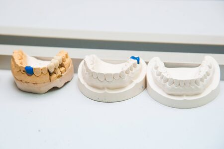 Dentist makes a dental implant prosthesis made of plaster cast. Model of the human jaw