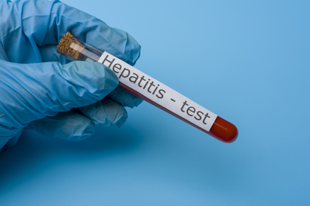 Hepatitis test, Blood in the test Tube. The concept of Medicine and Analysis. Stock Photo