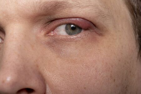 Close the upper left eyelid abscess. Eye with barley. Barley diseases, the concept of disease development.