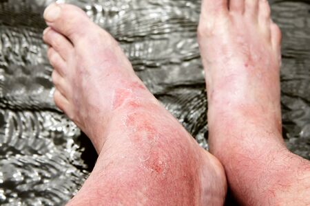 Severe burn of the skin with redness and dermatitis, the mans leg was severely swollen in the ankle area as a result of a sunburn. Dangerous effects of ultraviolet radiation on human skin.