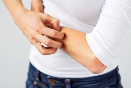 al�rgico: Mujer rascarse el brazo