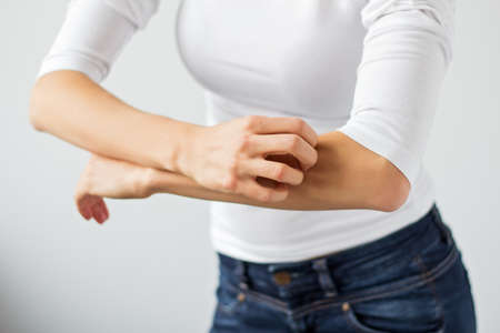 alergy: Woman scratching her arm Stock Photo