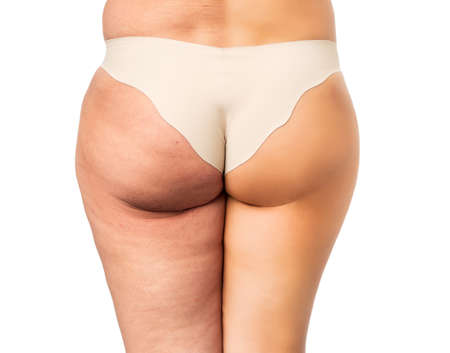 plastic surgery: Cellulite problem concept, before and after Stock Photo