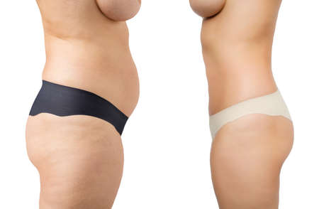 fat: Before and after weight loss Stock Photo