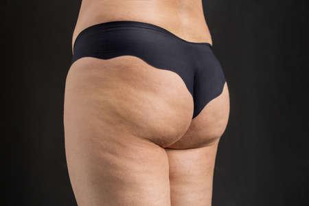 grosse fesse: Problème Cellulite