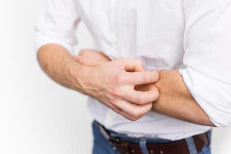 sarpullido: Hombre joven que tiene problema de la piel con picaz�n y seco Foto de archivo