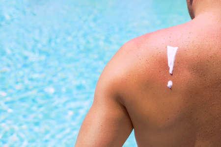 skin cancer: Danger of sunburn in direct bright sunshine