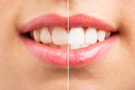 Tanden voor en na het bleken