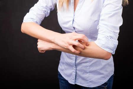 allergic reaction: Woman having an allergic reaction Stock Photo