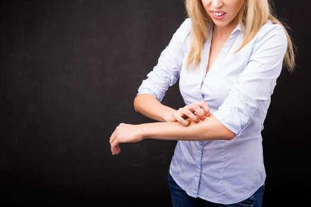 Vrouw krassen haar arm Stockfoto