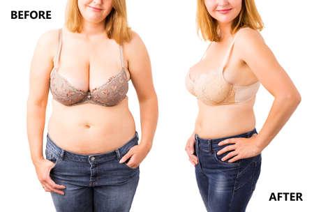 Frau vor und nach der Diät Lizenzfreie Bilder