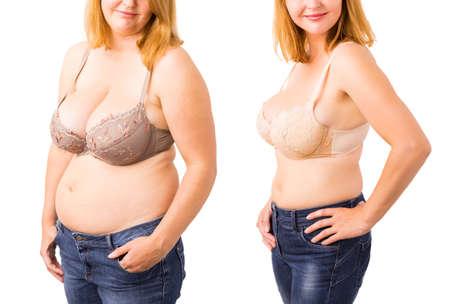 Frau vor und nach der Gewichtsverlust