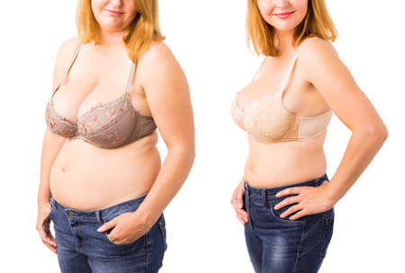 obeso: Mujer antes y después de la pérdida de peso