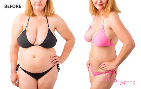 Frau im Bikini posiert vor und nach der Gewichtsverlust