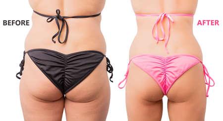 Vor und nach der Gewichtsverlust Vergleich