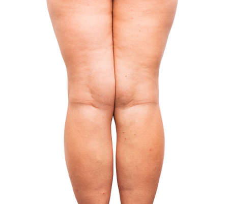 excessive: Excessive fat on legs