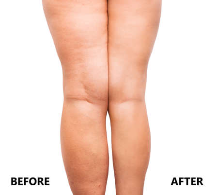 Womans legs before and after weight loss