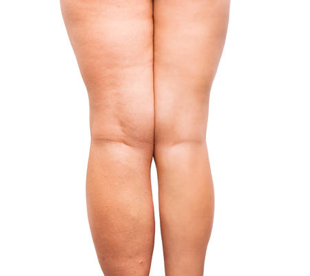 after: woman legs before and after wight loss