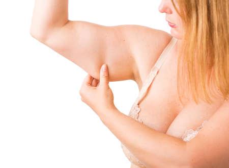 mujer gorda: Mujer con exceso de grasa en el brazo Foto de archivo