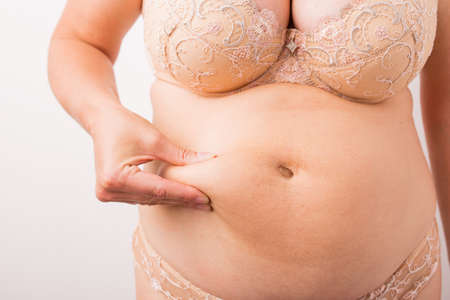 flesh surgery: Woman showing her fat tummy Stock Photo