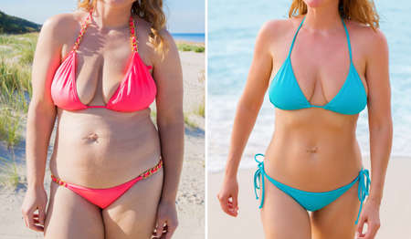 Candid photos of woman before and after successful diet 스톡 콘텐츠