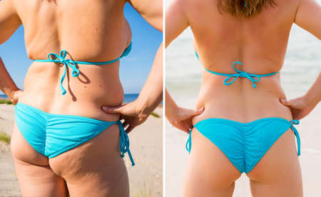 Woman's buttocks before and after weight loss Standard-Bild
