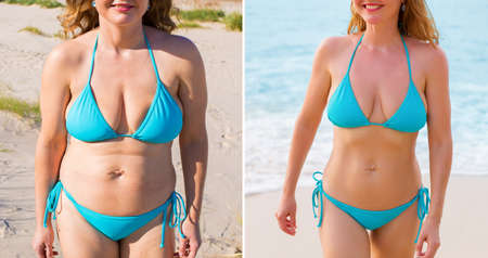 Mujer antes y después del éxito de la pérdida de peso Foto de archivo - 97371638
