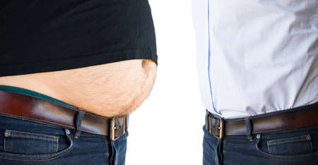 Man before and after liposuction Banco de Imagens