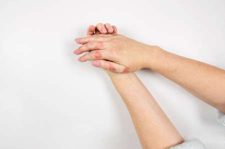 Female hands are affected by dermatitis. Eczema on the hands. Close-up.