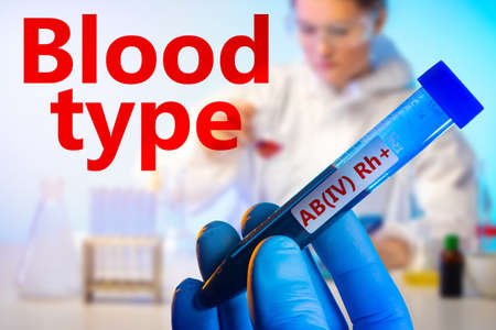 Red label blood type on the background of the test tube and laboratory. Laboratory analysis. Blood test. Determination of blood group. The fourth group with a positive RH factor.