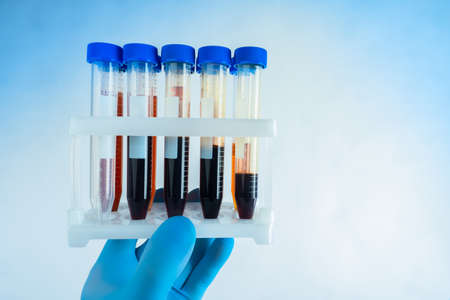 Blood tests. Research of biological fluids. A rubber-gloved hand holds a rack of test tubes. Lab technician hands with test tubes of blood samples. Blood of patients in test tubes for research. Stok Fotoğraf