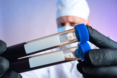 Blood test. The doctor is holding test tubes of blood with clean labels. Laboratory diagnostics. Lab technician hands with blood samples in test tubes. Lab technician holds blood samples for testing.