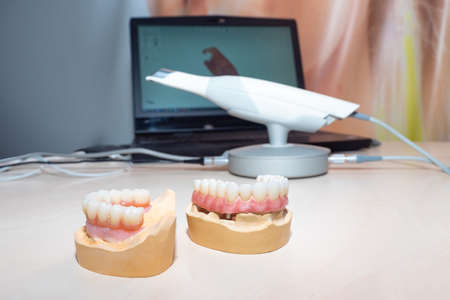 Oral cavity scanner. An electronic scanner displays video on a laptop screen. Concept - sale of equipment for dentist. Portable X-ray for the oral cavity. Dentures on dentist's table. Foto de archivo
