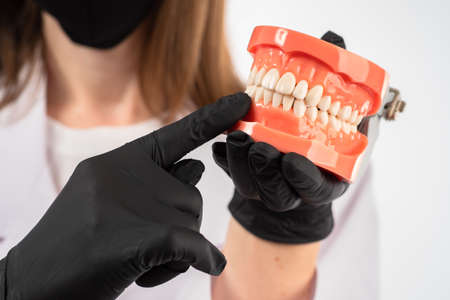 Dental consultation. Training of dentists. The dentist holds a model of a human jaw in his hands. Oral hygiene. Taking care of dental health.
