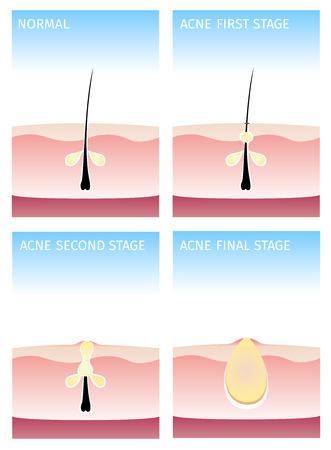 pus: How acne happen acne stages Illustration