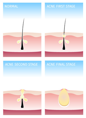 How acne happen acne stages Illustration