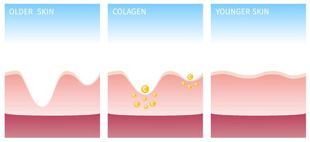 kollagén és a bőrt Illusztráció