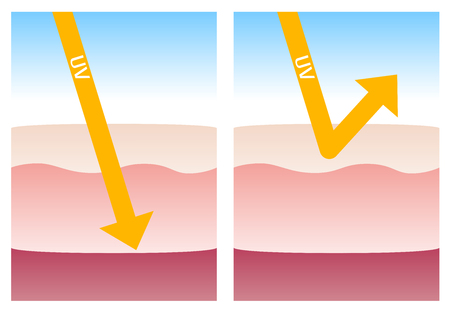 skin burns: uv protection Illustration
