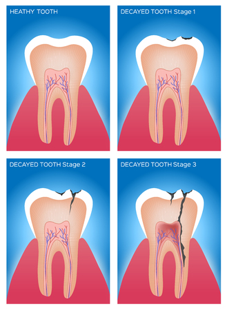 hygien: tooth and gum anatomy and damage Illustration