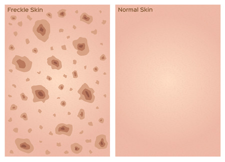 freckle: freckle skin texture graphic