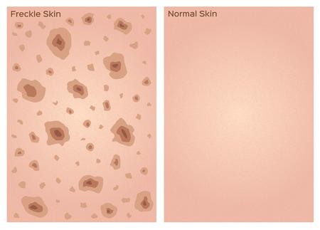 freckle skin texture graphic