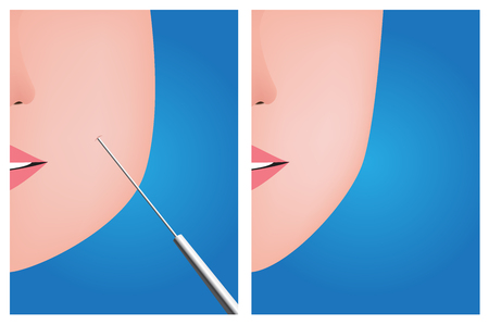 liposuction: Face liposuction , before after