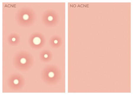 puberty: acne , before and after texture , vector