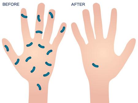 manos limpias: bacterias en vector de la mano, antes después
