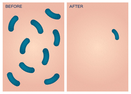 before and after: bacteria on hand vector , before after Illustration