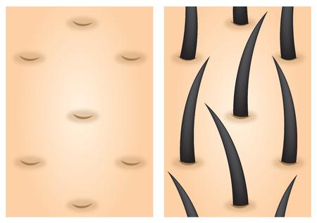 Estimulantes del crecimiento del cabello antes de después de Foto de archivo - 55387619