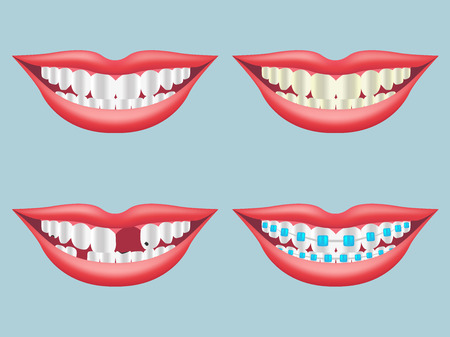 hygien: white, dirty, decayed, broken and orthodontics tooth vector Illustration