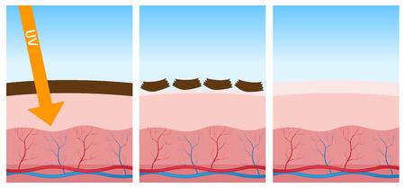 uv: uv and dead skin Illustration