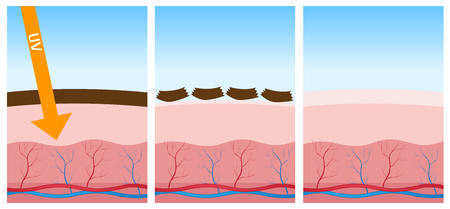 melanin: uv and dead skin Illustration